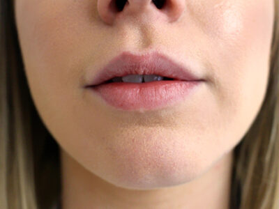 Results before undergoing lip filler treatment