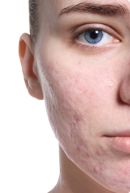 Acne Scar Treatments Scar Removal Sk N Clinics