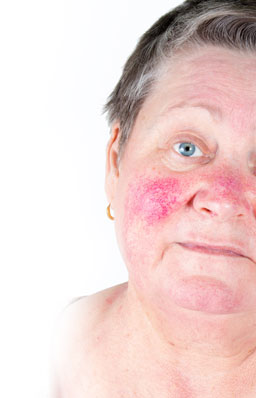 Acne Rosacea Laser Treatments And Costs Sk N Clinics