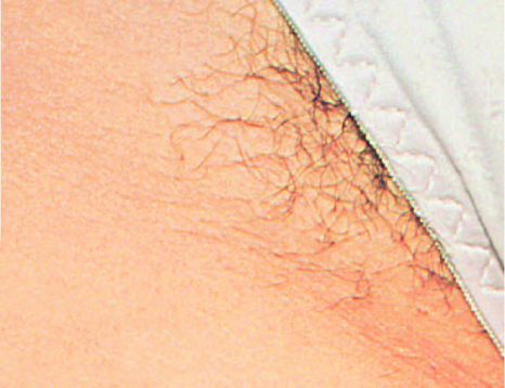 Before Bikini Line Laser Hair Removal