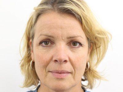Botox Before photo