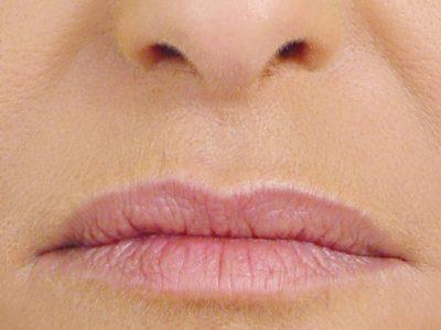 Results after undergoing cheek filler treatment