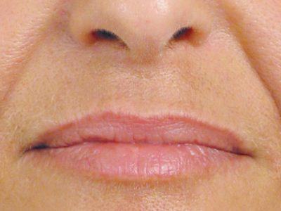 Results before undergoing cheek filler treatment
