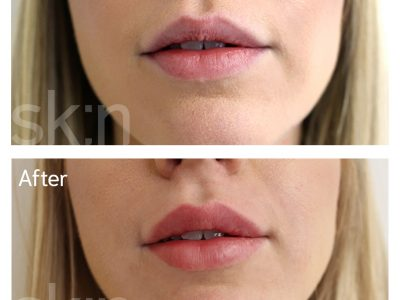 Juvederm Before and After Lip Fillers