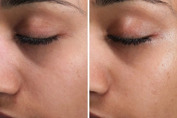medik8 universal before and after 3rd peel
