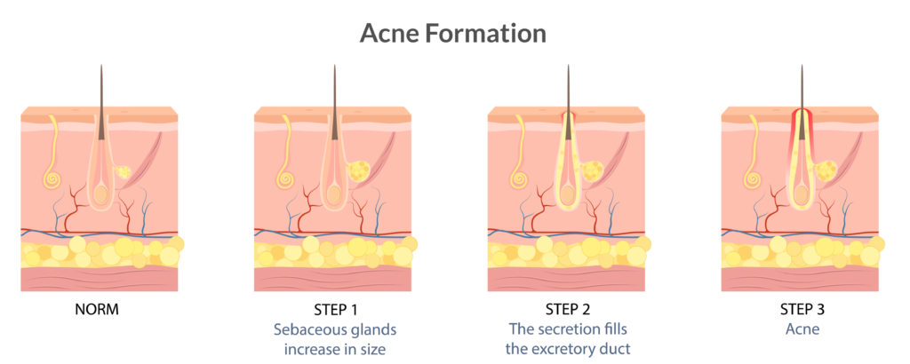 acne formation illustration