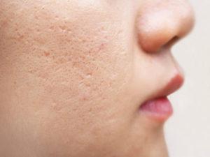 icepick acne scars