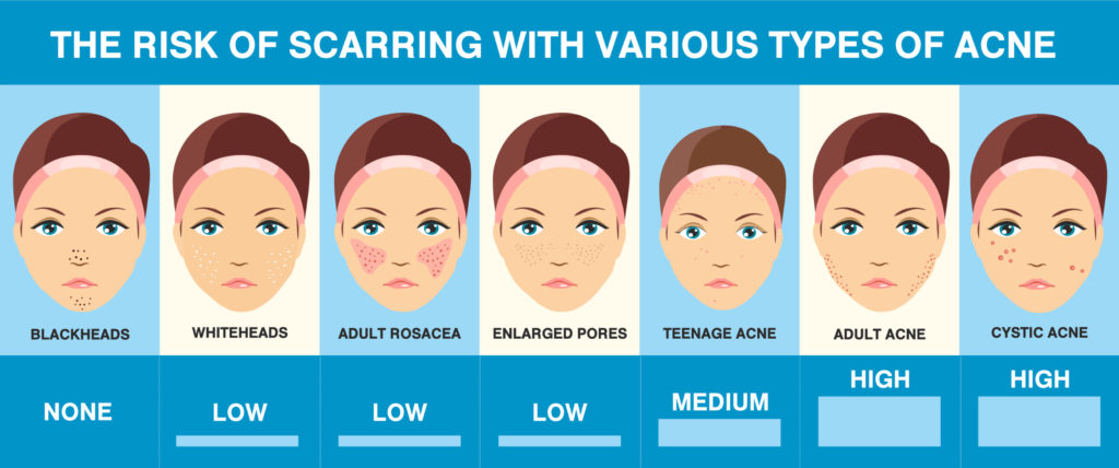 acne scarring risk chart