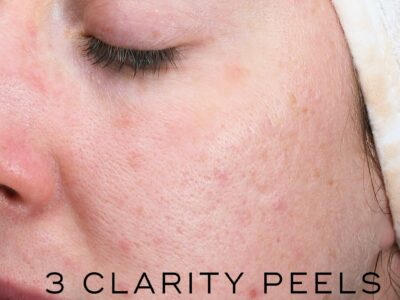 Medik8 clarity before and after