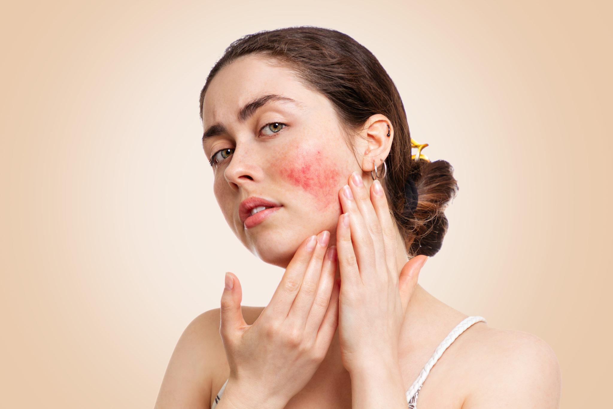 rosacea red skin